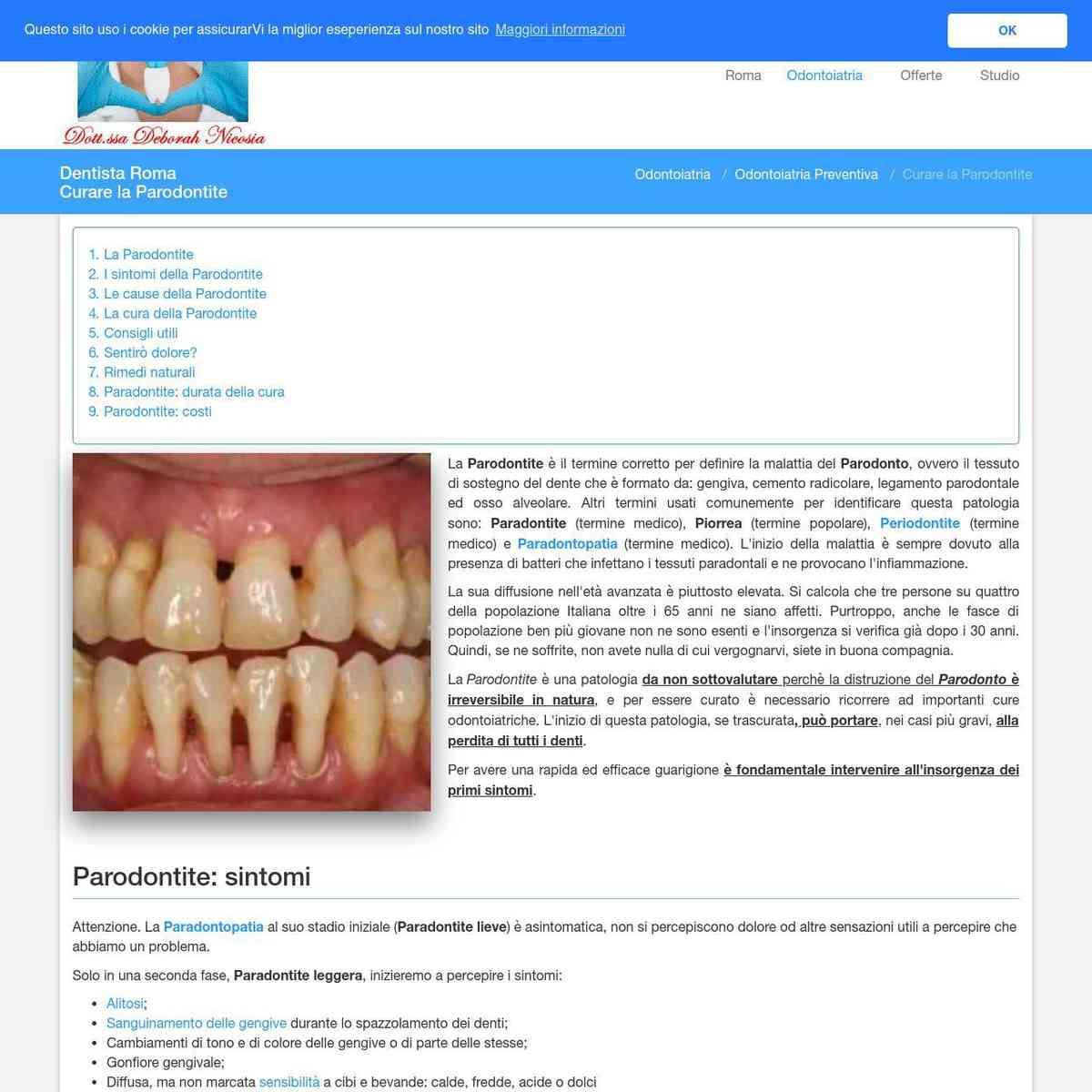 Curare la Parodontite - Dentista Roma