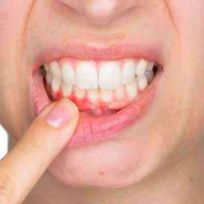 Cura della gengivite - Dentista Roma