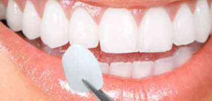 Faccette dentali - Dentista Roma